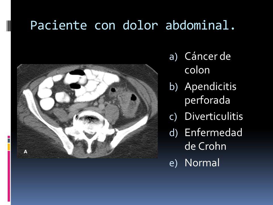 Paciente con dolor abdominal.