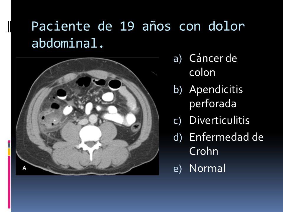 Paciente de 19 años con dolor abdominal.