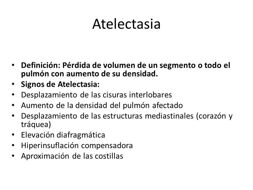 Atelectasia Definición: Pérdida de volumen de un segmento o todo el pulmón con aumento de su densidad.