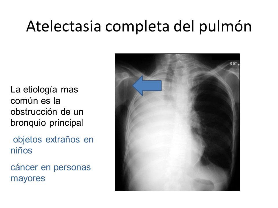 Atelectasia completa del pulmón
