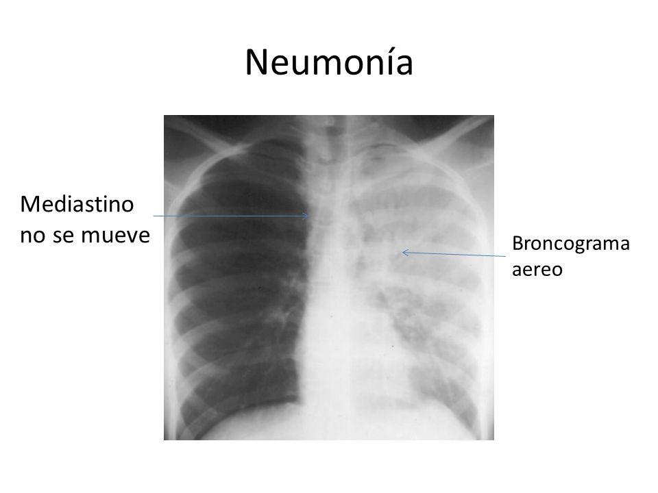 Neumonía Mediastino no se mueve Broncograma aereo
