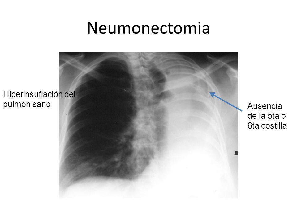Neumonectomia Hiperinsuflación del pulmón sano