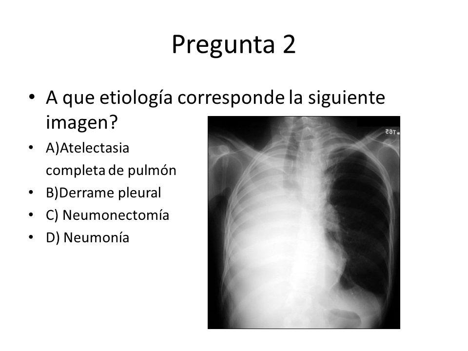 Pregunta 2 A que etiología corresponde la siguiente imagen