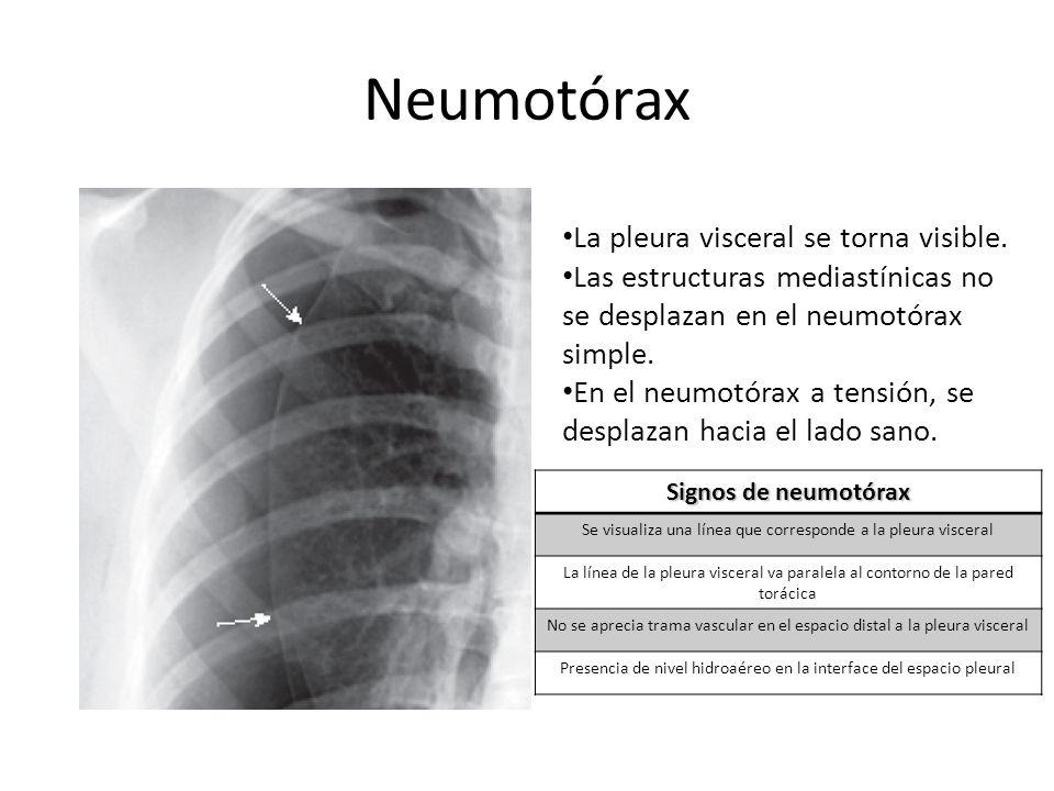 Neumotórax La pleura visceral se torna visible.