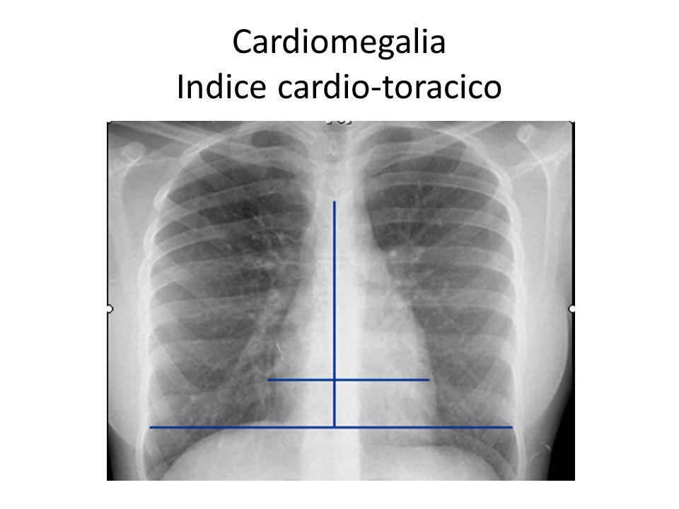 Cardiomegalia Indice cardio-toracico