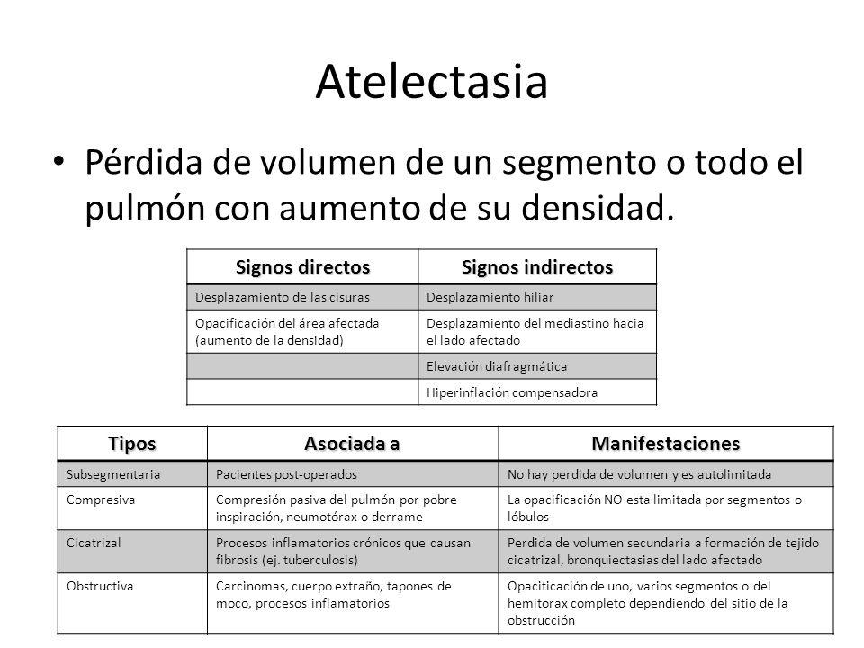 Atelectasia Pérdida de volumen de un segmento o todo el pulmón con aumento de su densidad. Signos directos.