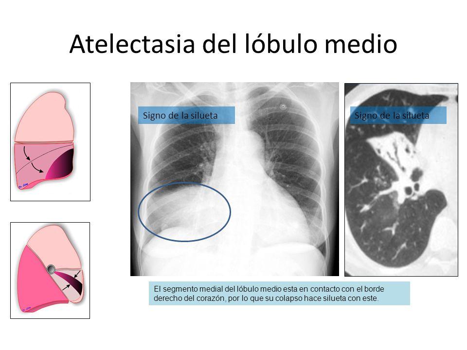 Atelectasia del lóbulo medio