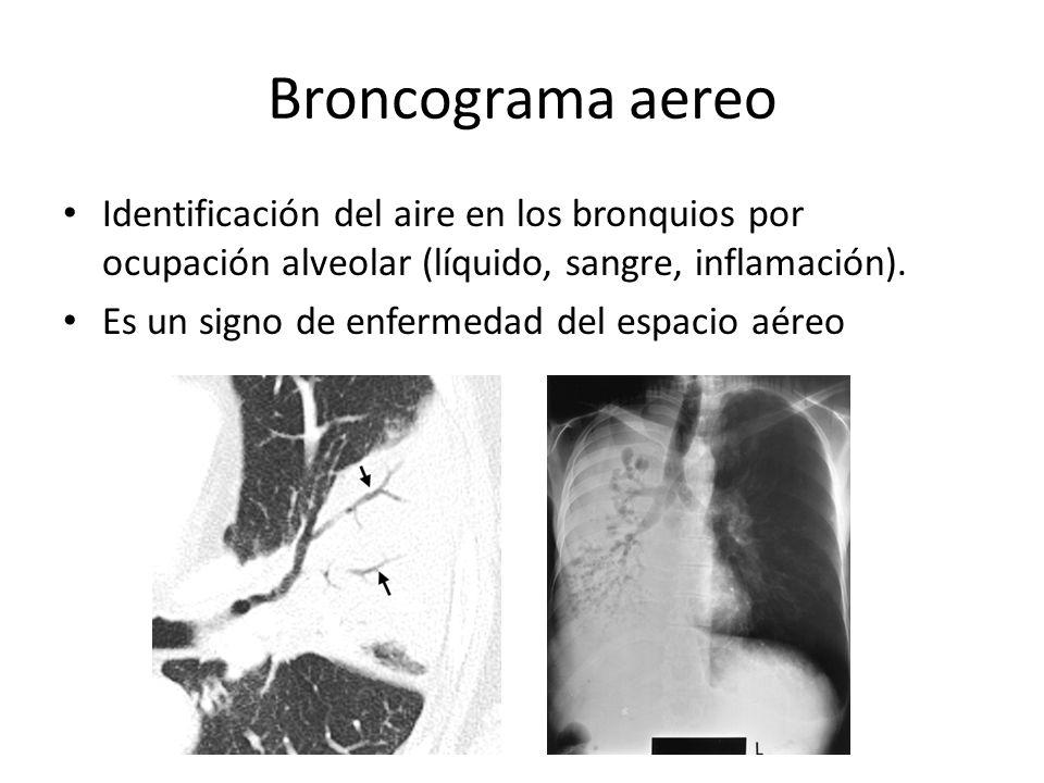 Broncograma aereo Identificación del aire en los bronquios por ocupación alveolar (líquido, sangre, inflamación).