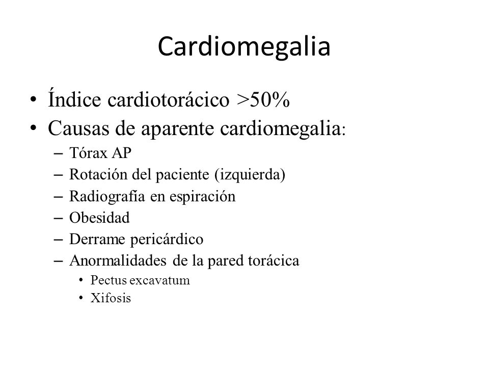 Cardiomegalia Índice cardiotorácico >50%