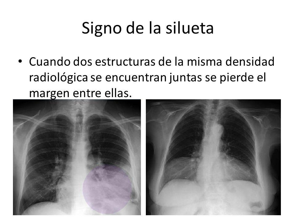 Signo de la silueta Cuando dos estructuras de la misma densidad radiológica se encuentran juntas se pierde el margen entre ellas.