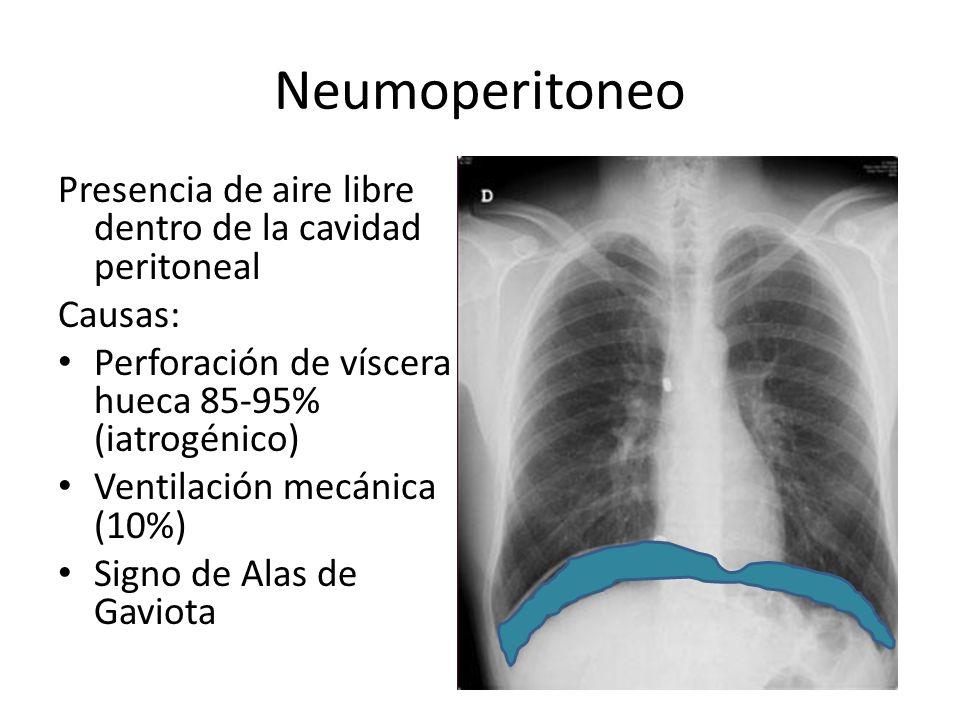 Neumoperitoneo Presencia de aire libre dentro de la cavidad peritoneal