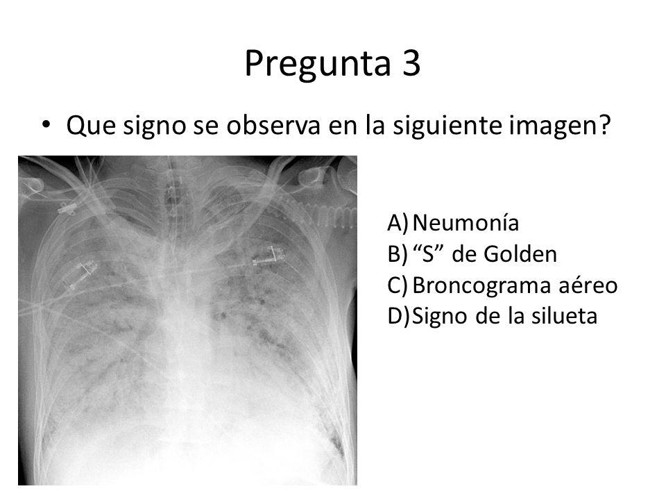 Pregunta 3 Que signo se observa en la siguiente imagen Neumonía
