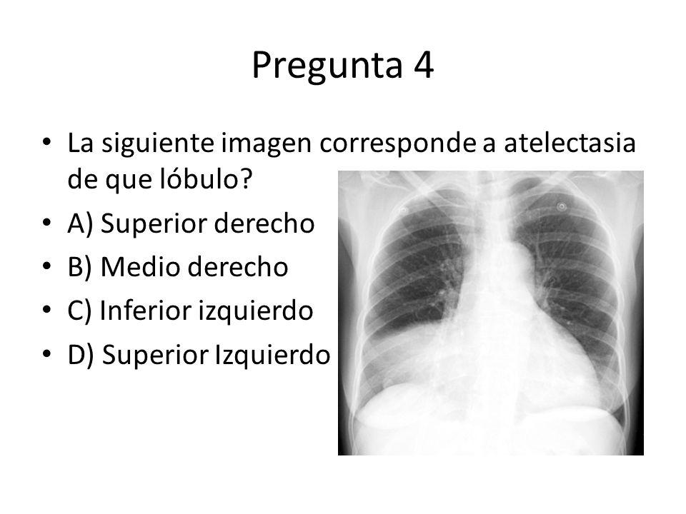Pregunta 4 La siguiente imagen corresponde a atelectasia de que lóbulo A) Superior derecho. B) Medio derecho.