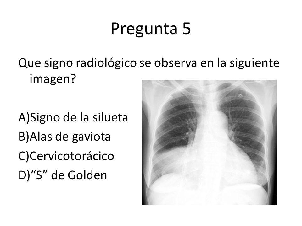 Pregunta 5 Que signo radiológico se observa en la siguiente imagen