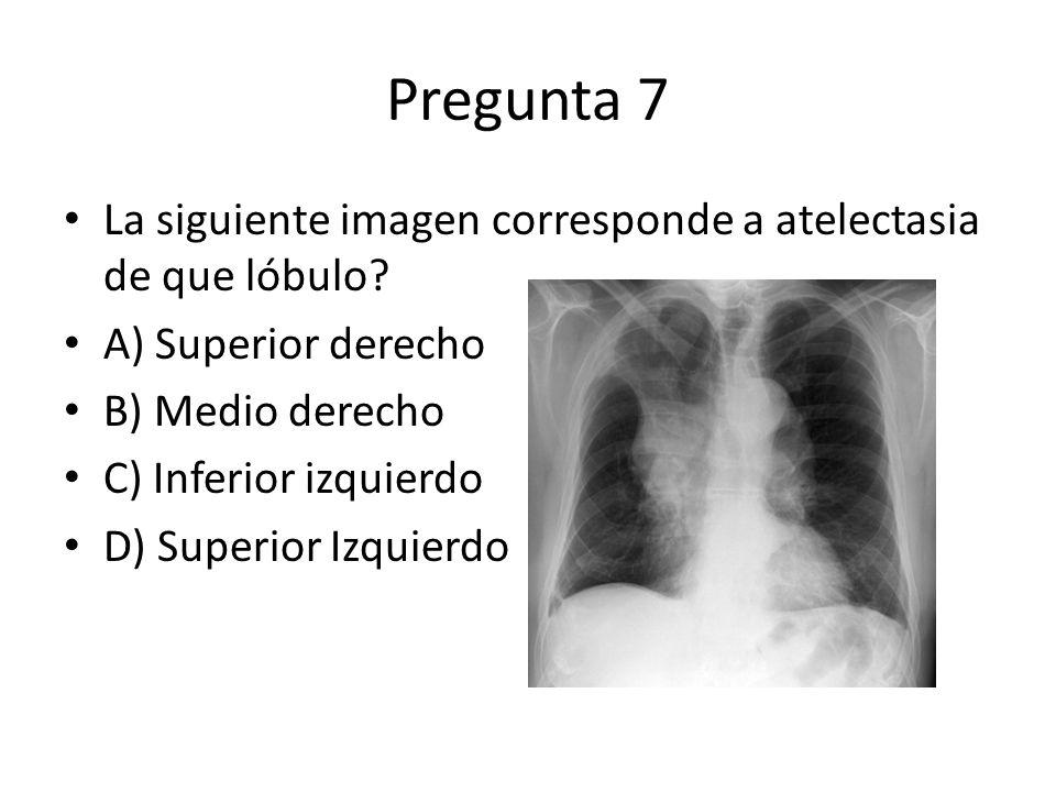 Pregunta 7 La siguiente imagen corresponde a atelectasia de que lóbulo A) Superior derecho. B) Medio derecho.