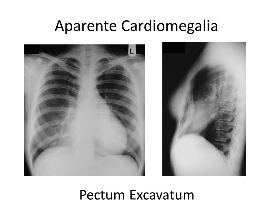 Aparente Cardiomegalia