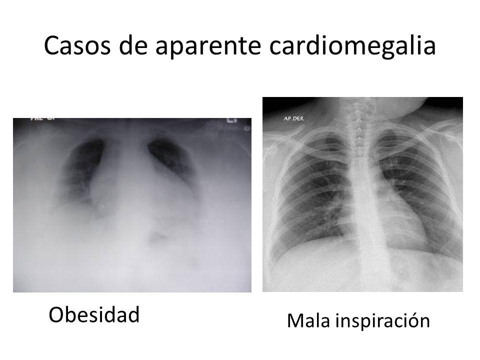 Casos de aparente cardiomegalia