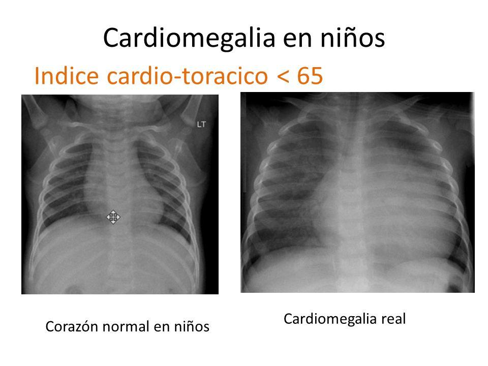 Cardiomegalia en niños