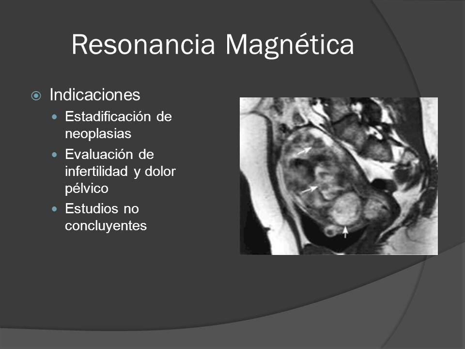 Resonancia Magnética Indicaciones Estadificación de neoplasias