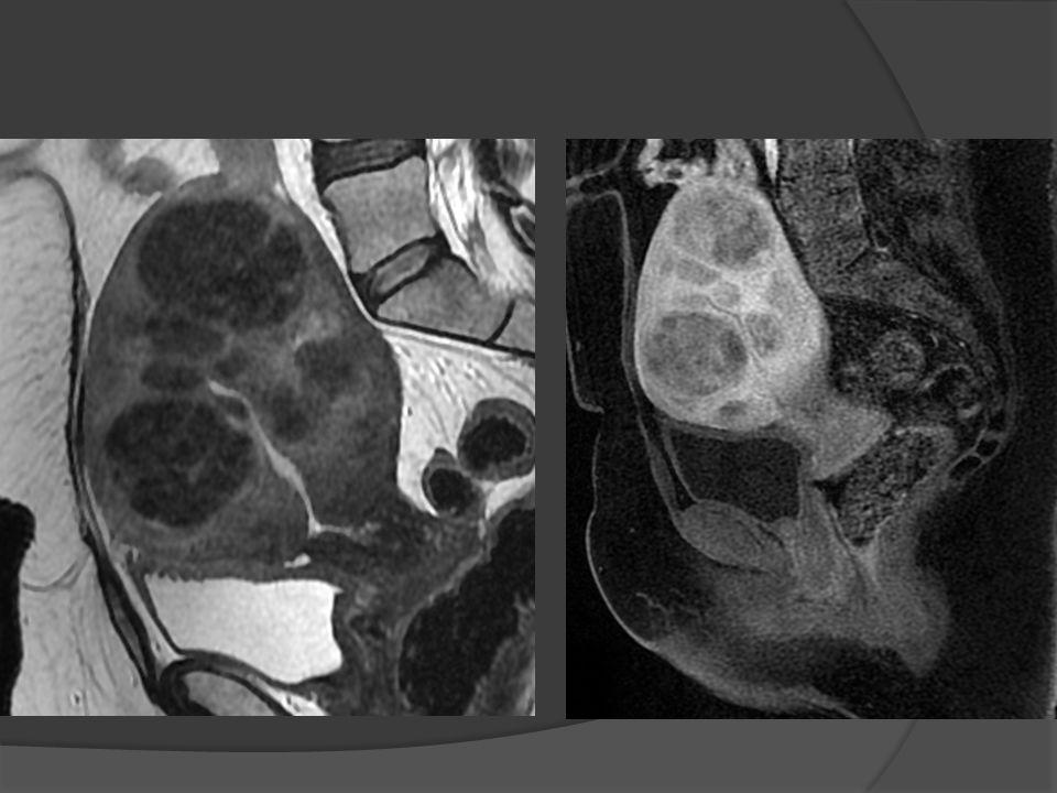 Leiomioma uterino