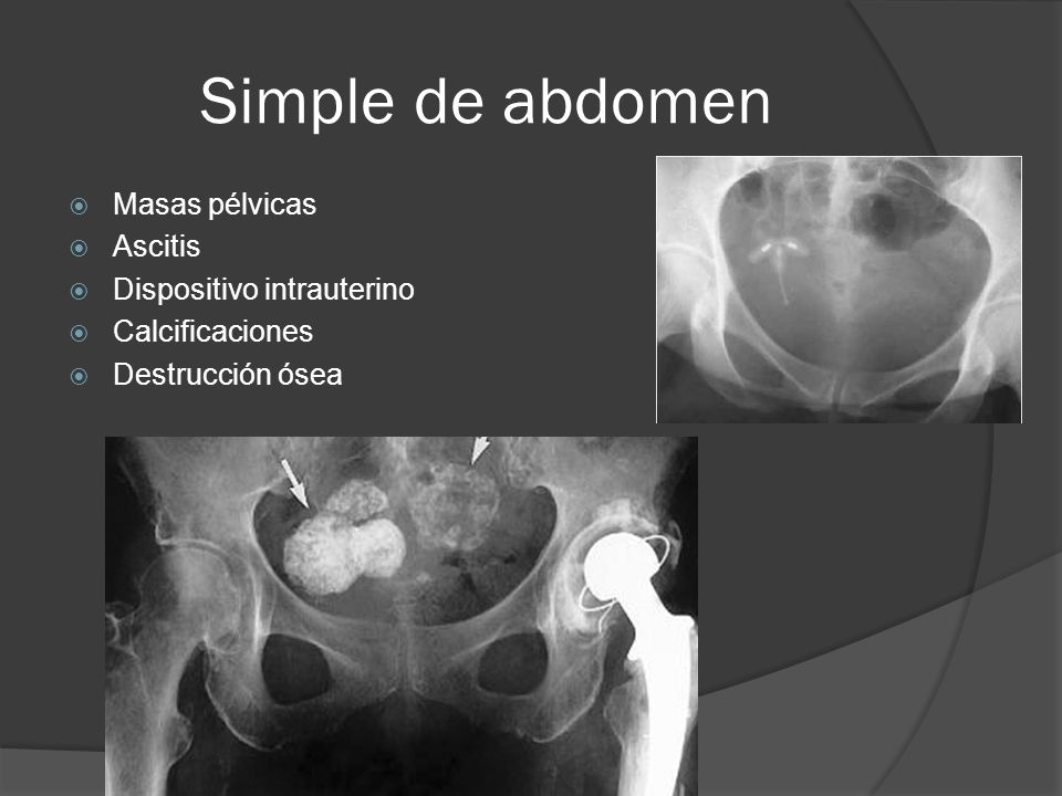Simple de abdomen Masas pélvicas Ascitis Dispositivo intrauterino