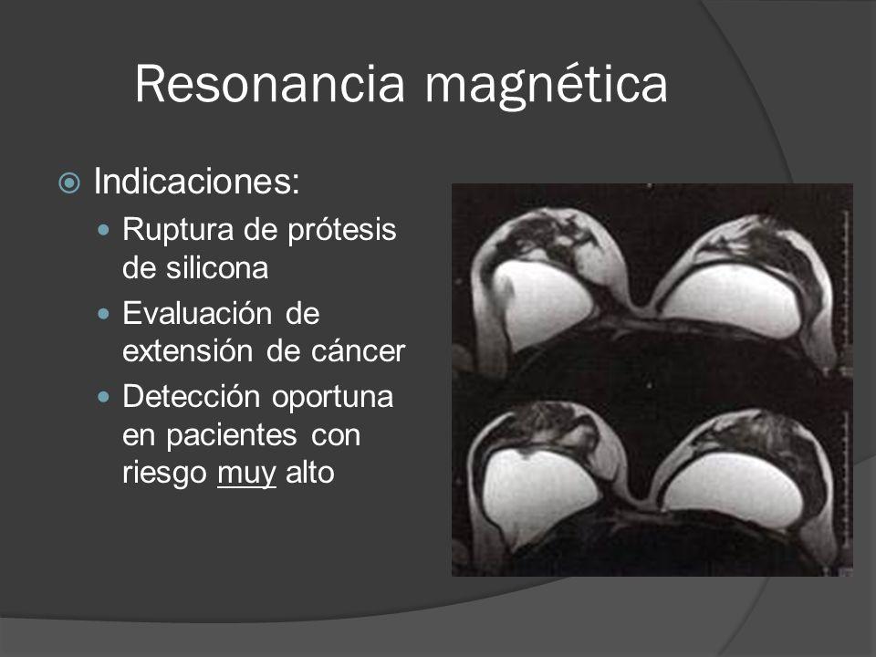 Resonancia magnética Indicaciones: Ruptura de prótesis de silicona