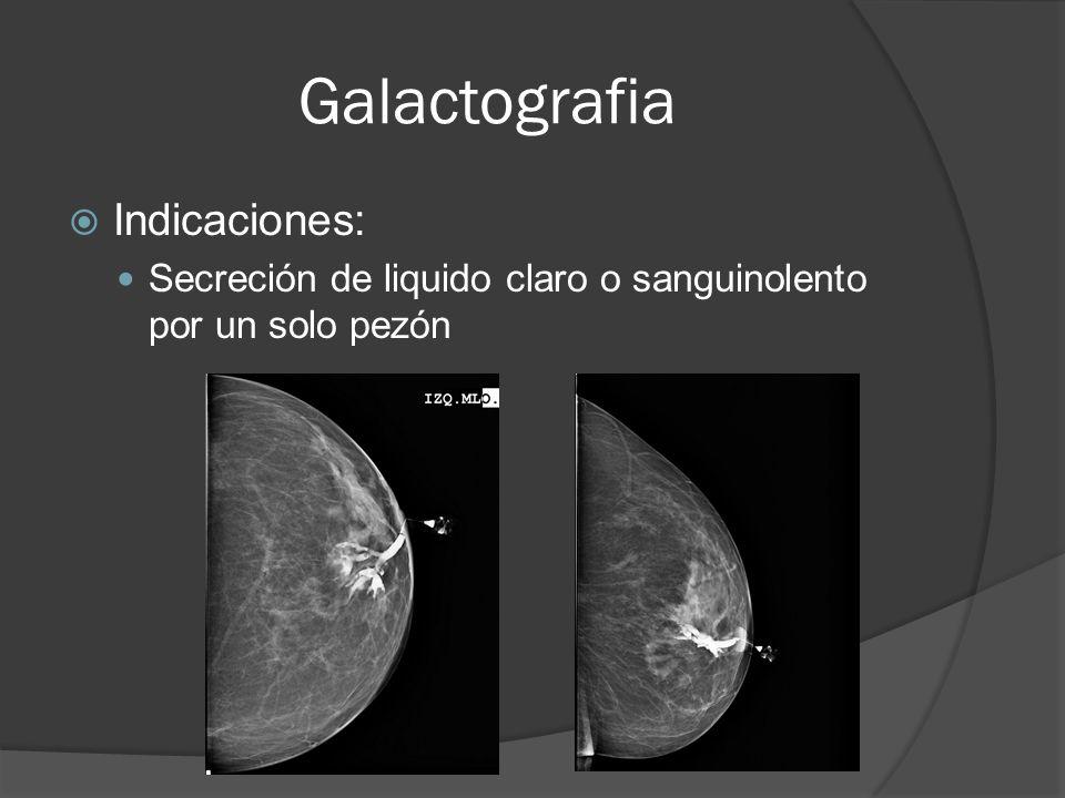 Galactografia Indicaciones: