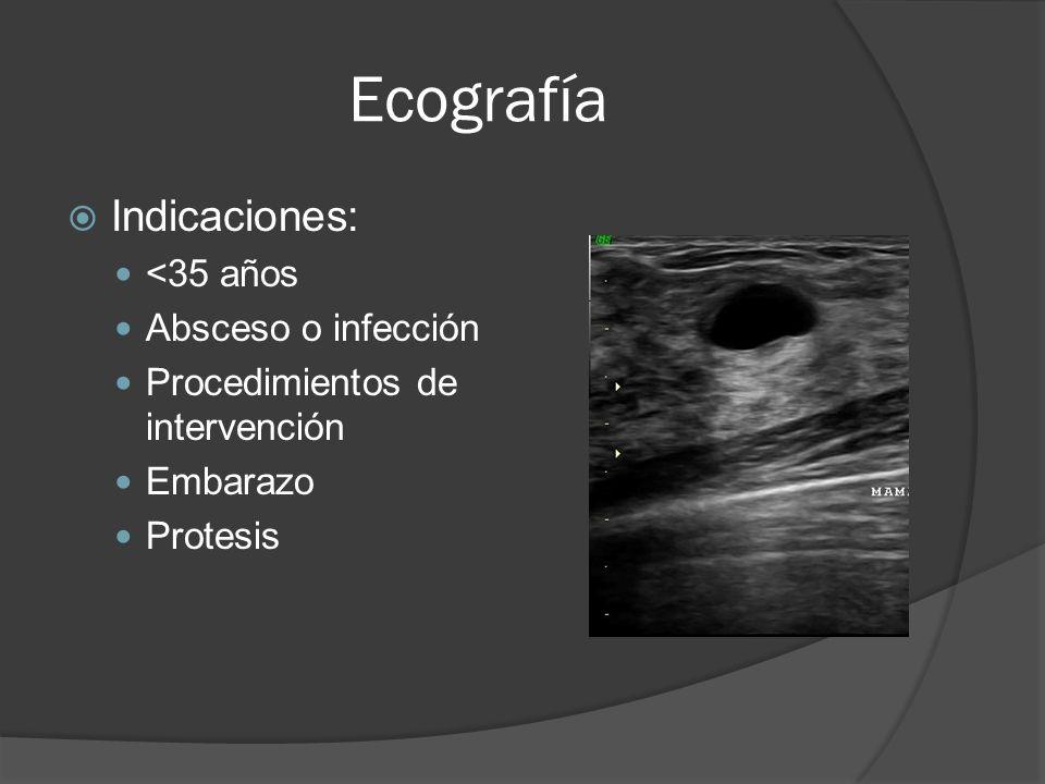 Ecografía Indicaciones: <35 años Absceso o infección