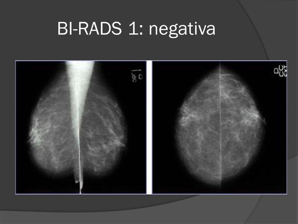 BI-RADS 1: negativa
