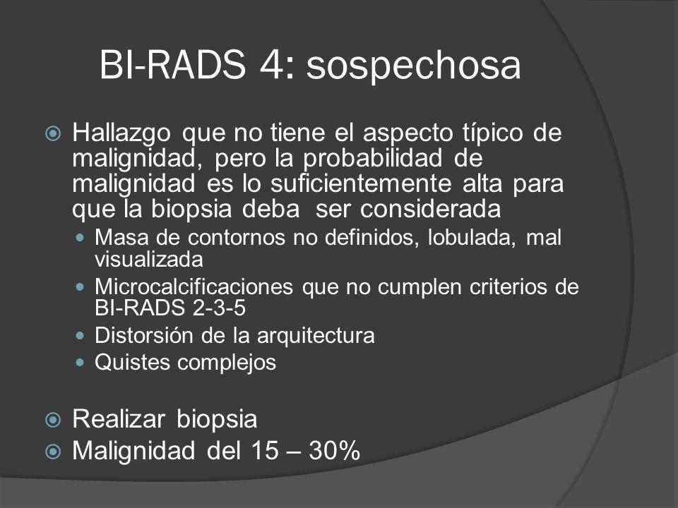 BI-RADS 4: sospechosa