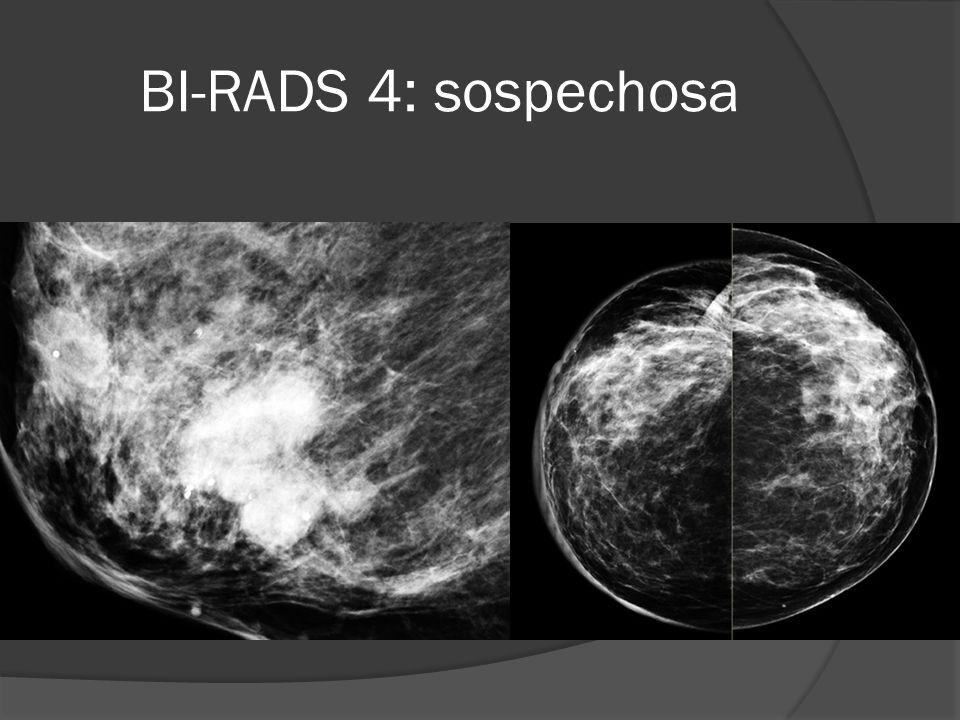 BI-RADS 4: sospechosa Nódulo de morfología lobulada, márgenes borrosos y alta densidad.