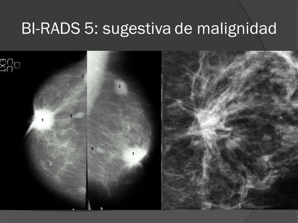 BI-RADS 5: sugestiva de malignidad