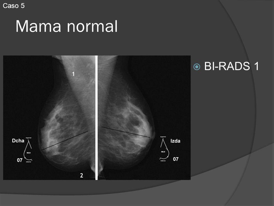 Caso 5 Mama normal BI-RADS 1
