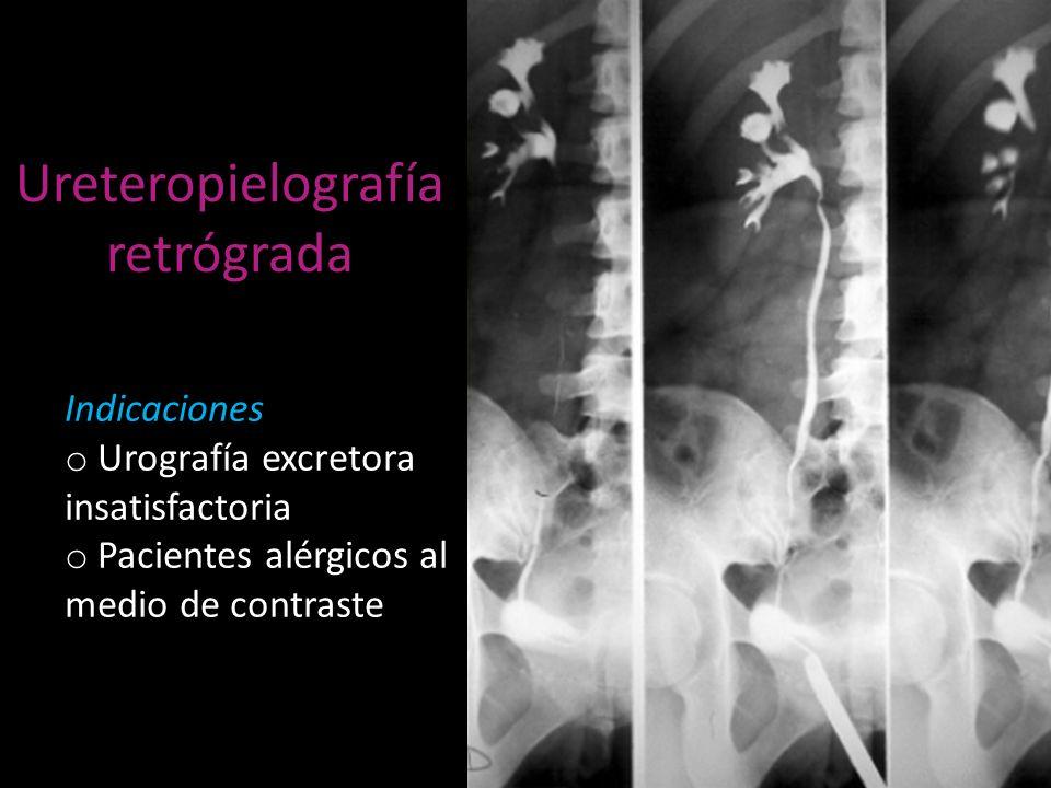 Ureteropielografía retrógrada