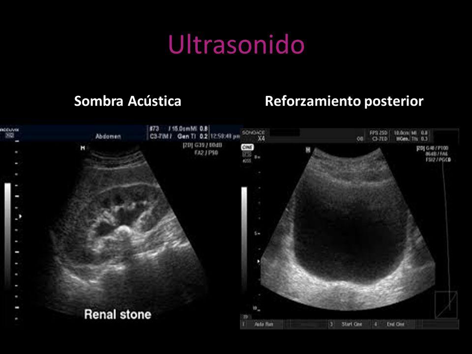 Hermosa Riñón Anatomía Ultrasonido Colección de Imágenes - Imágenes ...