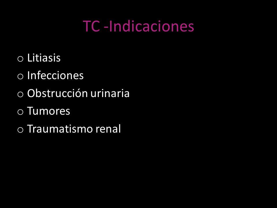 TC -Indicaciones Litiasis Infecciones Obstrucción urinaria Tumores
