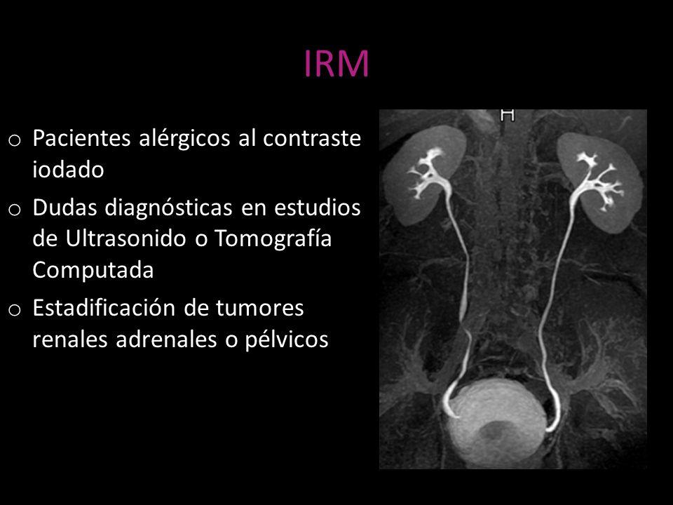 IRM Pacientes alérgicos al contraste iodado