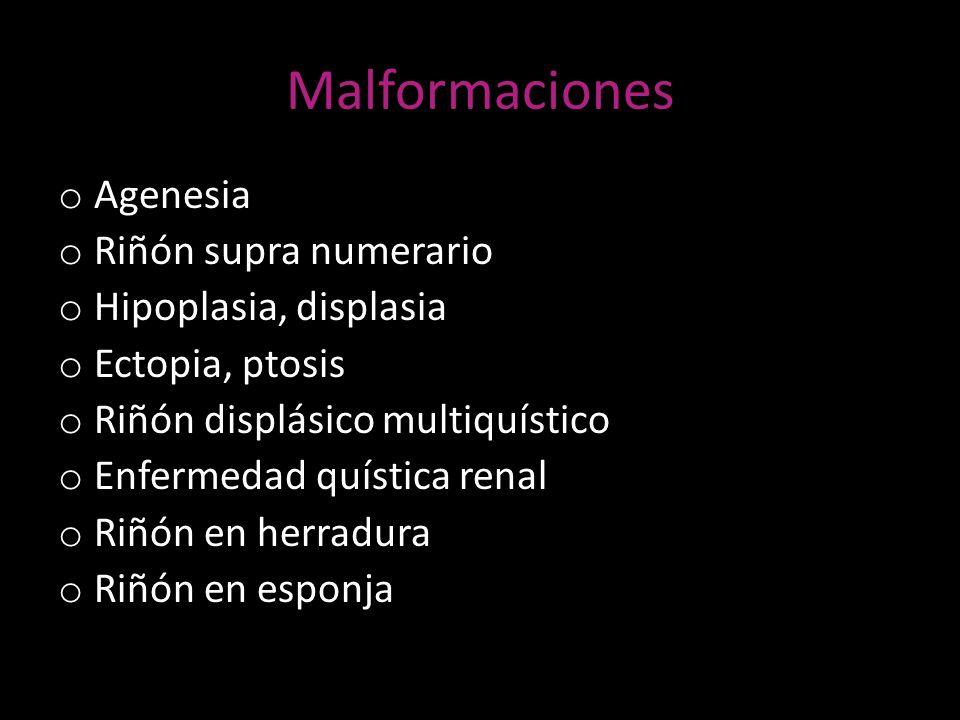 Malformaciones Agenesia Riñón supra numerario Hipoplasia, displasia