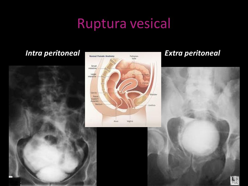 Ruptura vesical Intra peritoneal Extra peritoneal