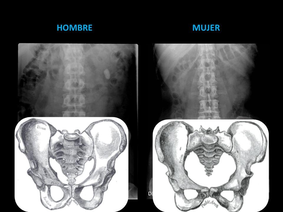 HOMBRE MUJER. La mejor forma de saber el sexo del paciente en una AP es por la forma del hueco pelvico.