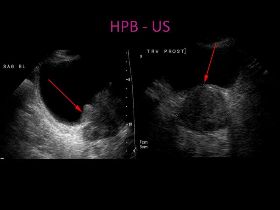 HPB - US