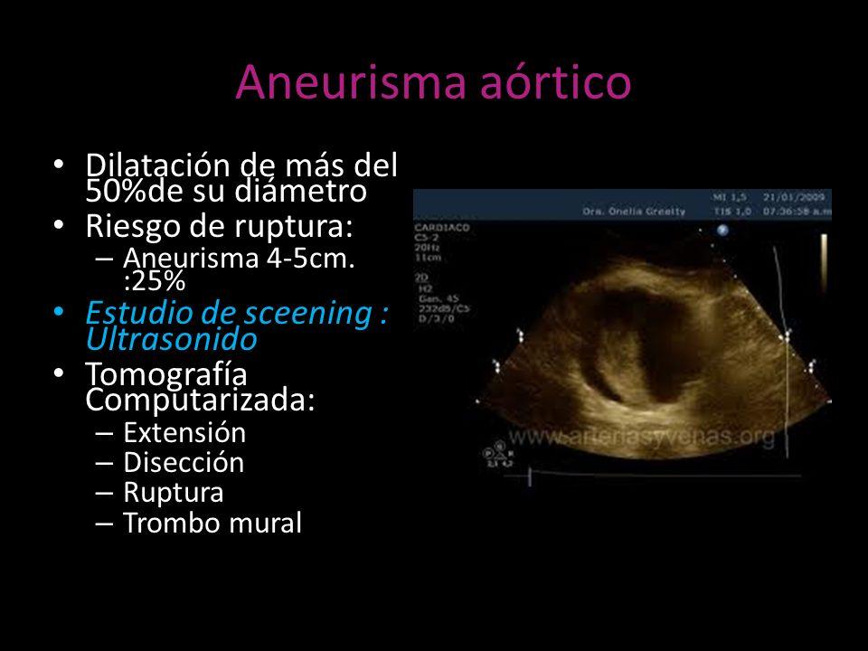 Aneurisma aórtico Dilatación de más del 50%de su diámetro