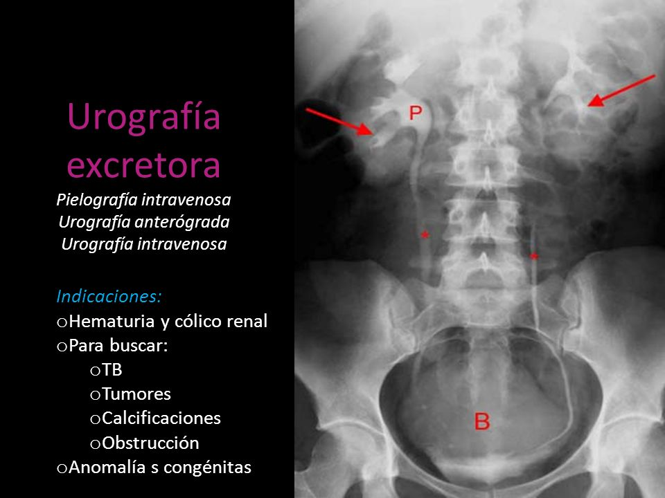 Urografía excretora Pielografía intravenosa Urografía anterógrada Urografía intravenosa