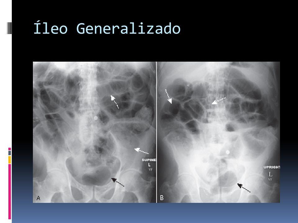 Íleo Generalizado