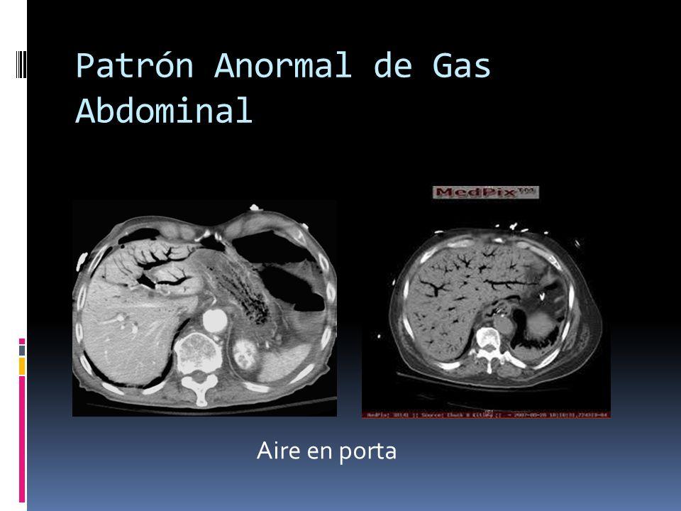 Patrón Anormal de Gas Abdominal