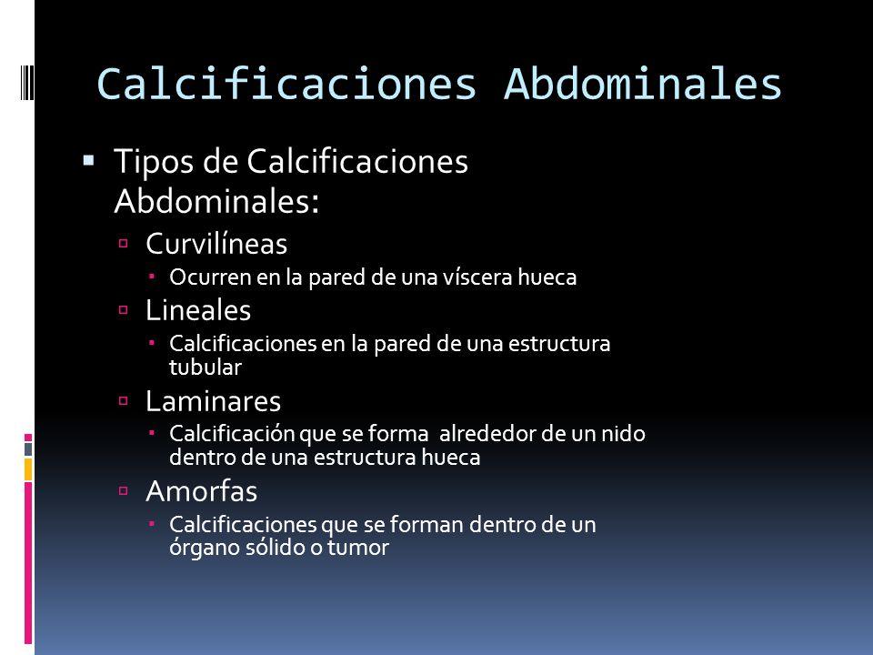 Calcificaciones Abdominales