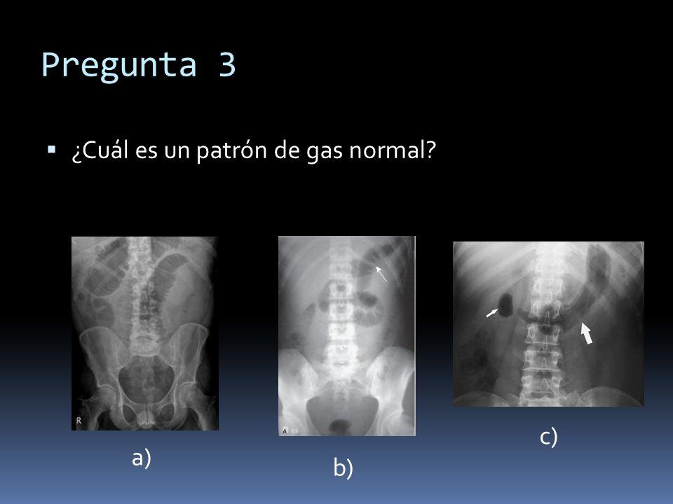 Pregunta 3 ¿Cuál es un patrón de gas normal c) a) b)
