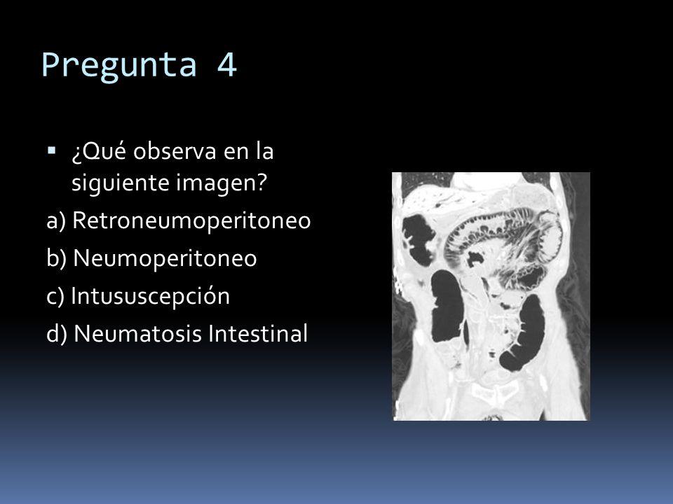 Pregunta 4 ¿Qué observa en la siguiente imagen a) Retroneumoperitoneo