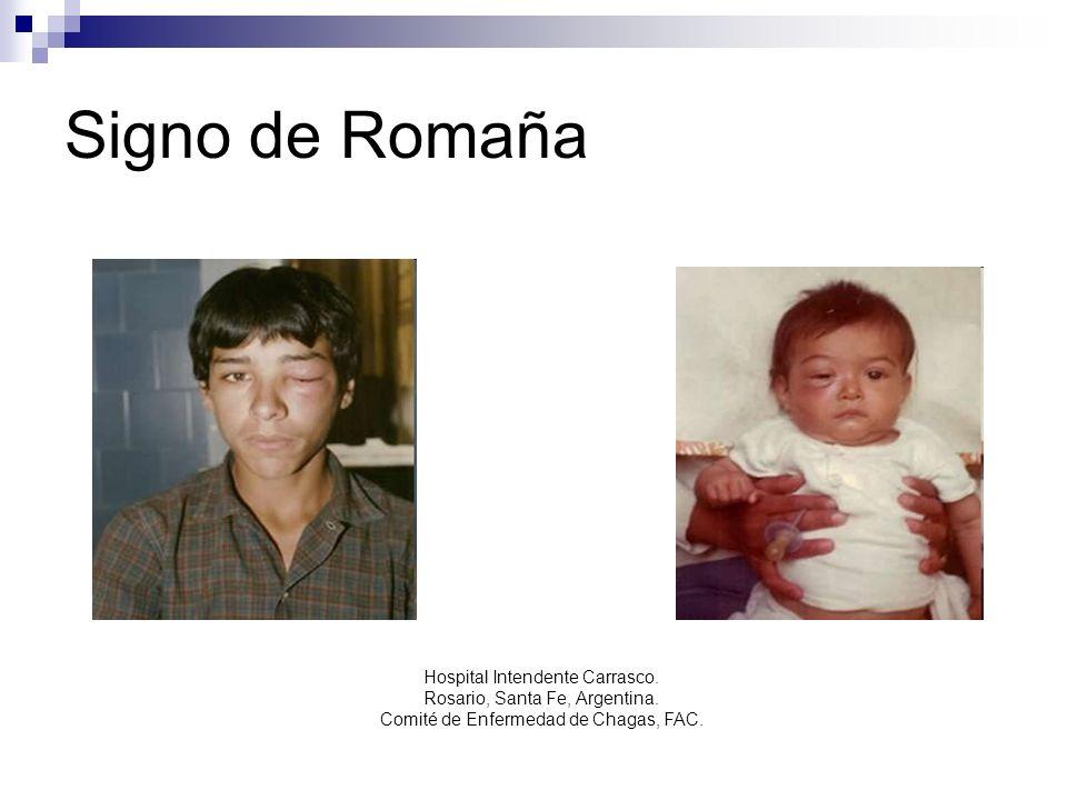 Signo de Romaña Hospital Intendente Carrasco. Rosario, Santa Fe, Argentina. Comité de Enfermedad de Chagas, FAC.