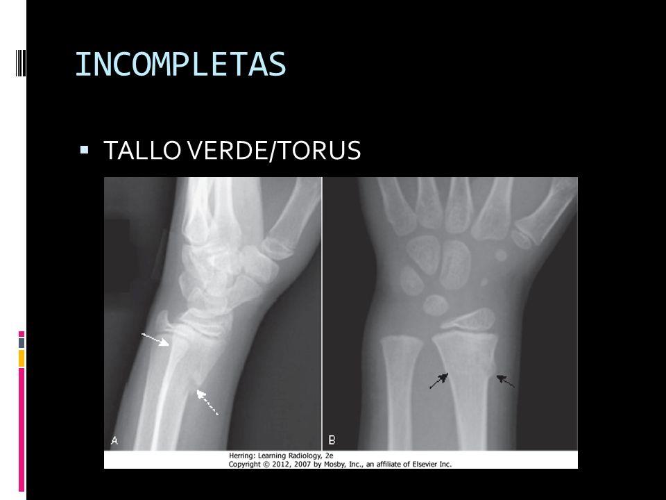 INCOMPLETAS TALLO VERDE/TORUS